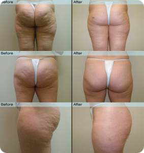 cellulite removed